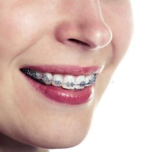 Fogyás fogszabályozás. Az 5 leggyakoribb tévhit a fogszabályozásról