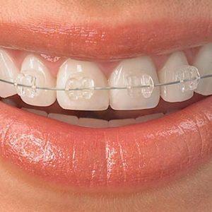 Tévhitek a fogszabályozásról