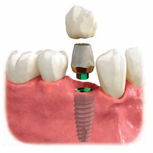 implantatum vélemény