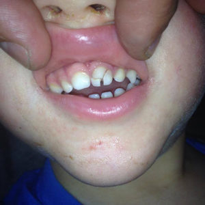 Tudtad, hogy a háromkerekű kismotorok milyen veszélyt jelentenek a gyermekek fogára?