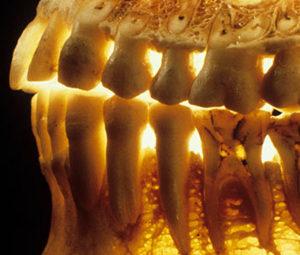 foghúzás és csontritkulás