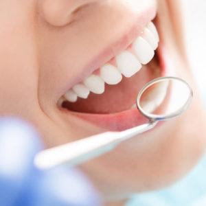 Prevenciós fogászat
